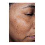 How to treat Hyperpigmentation